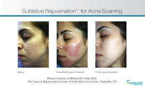 , eMatrix – Skin Rejuvenation