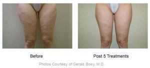 , VelaShape® III Body Contouring