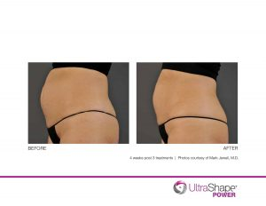, UltraShape – Body Shaping